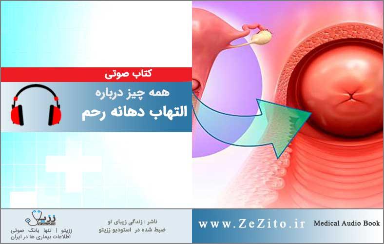 التهاب دهانه رحم
